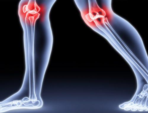 Was tun bei starken Knieschmerzen? Kniearthrose erkennen und behandeln