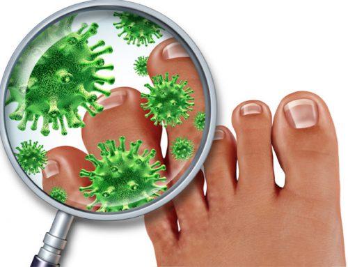 Fußpilz effektiv behandeln und für immer loswerden