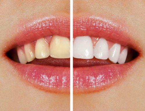 Wertvolle Tipps für weiße Zähne – Mittel gegen Zahnverfärbungen